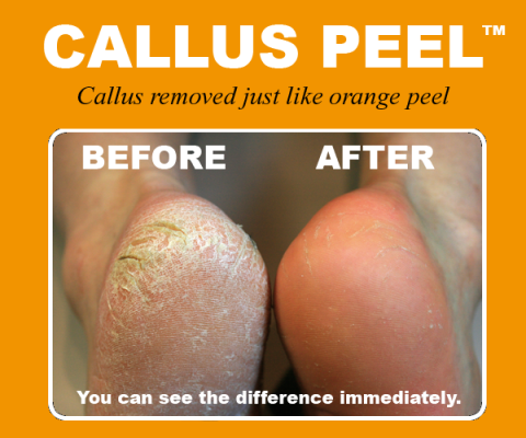 Published on Callus Peel