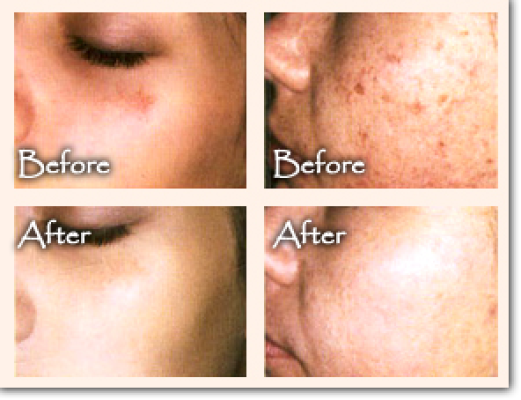 Published on *Diamond Peel Offer*
